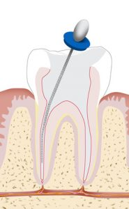 Concept diagram of root canal treatment