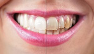Beefore and after tooth whitening